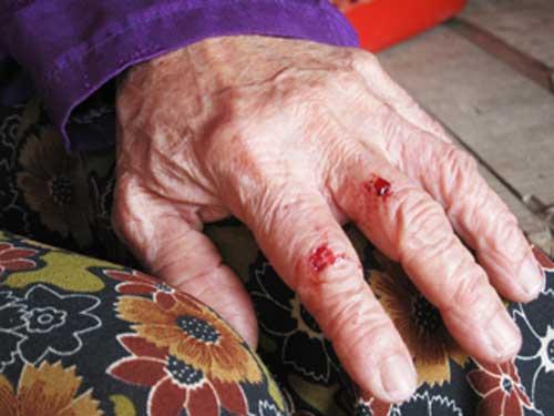 bị đánh, mẹ chồng nàng dâu, câu chuyện gia đình