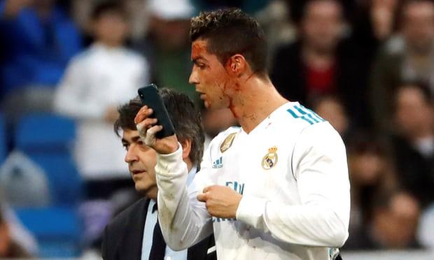 Bị chảy máu đầu Ronaldo vẫn quan tâm đến nhan sắc