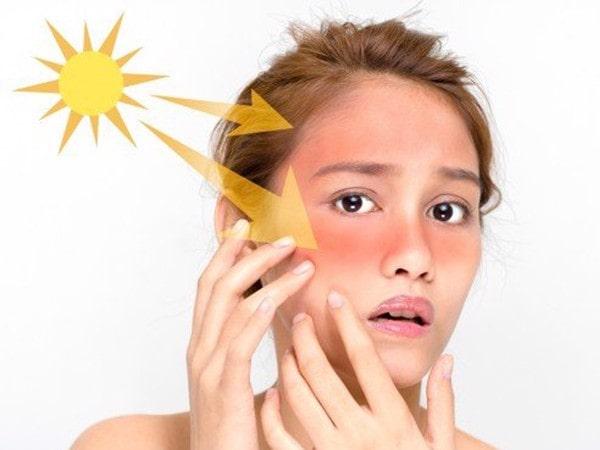Cách chữa cháy nắng bằng sữa tươi